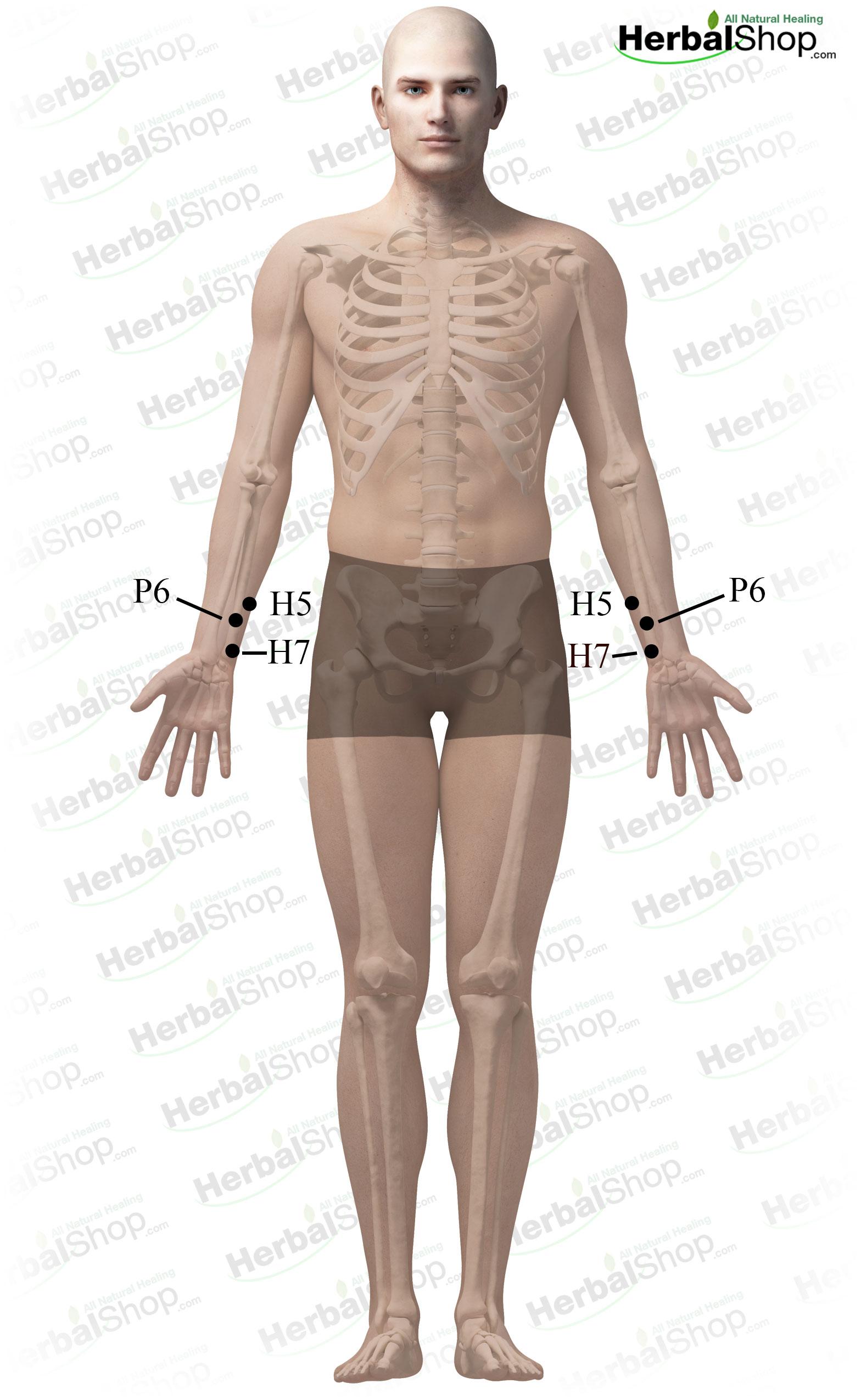 Arthritis of the